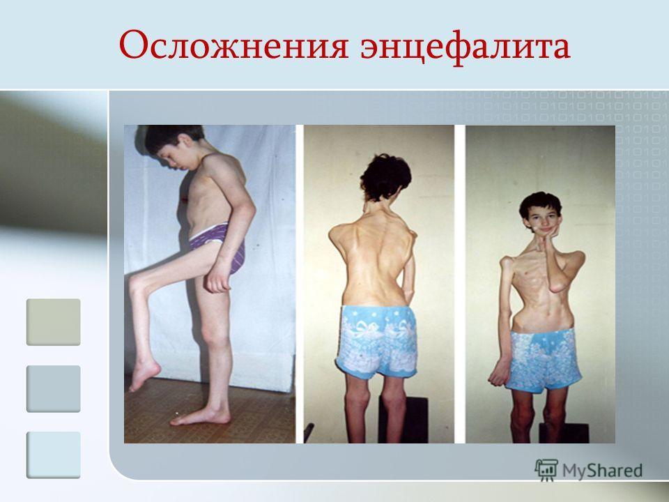 Осложнения энцефалита
