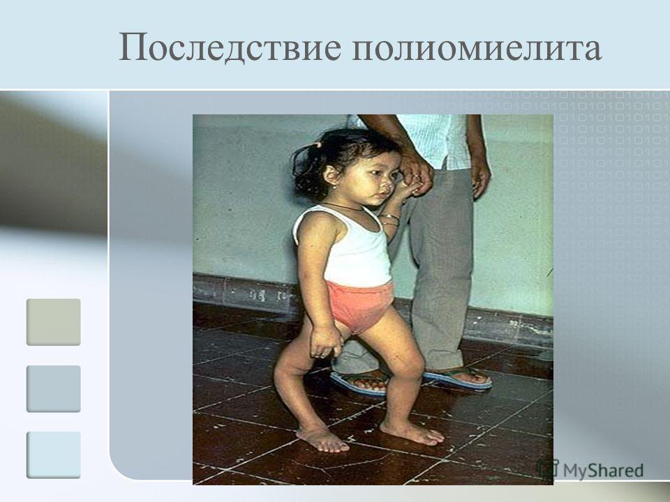 Последствие полиомиелита