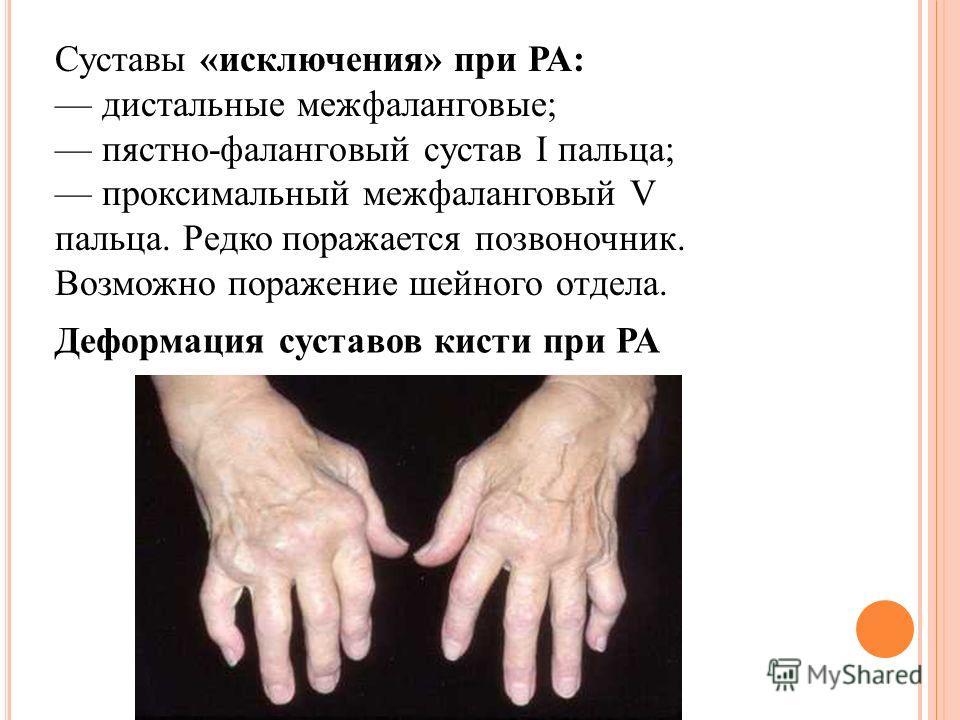 Суставы «исключения» при РА: дистальные межфаланговые; пястно-фаланговый сустав I пальца; проксимальный межфаланговый V пальца. Редко поражается позвоночник. Возможно поражение шейного отдела. Деформация суставов кисти при РА