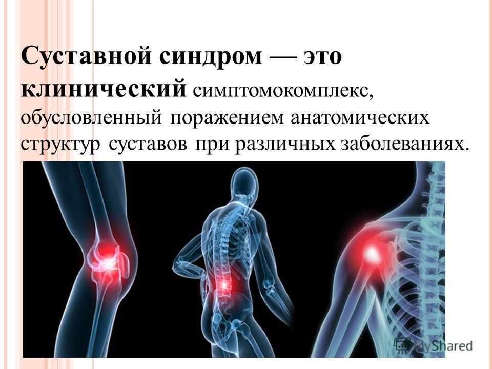Суставной синдром это клинический симптомокомплекс, обусловленный поражением анатомических структур суставов при различных заболеваниях.
