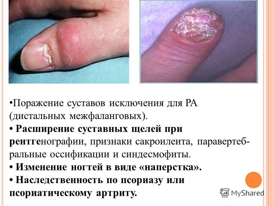 артрит и артроз симптомы