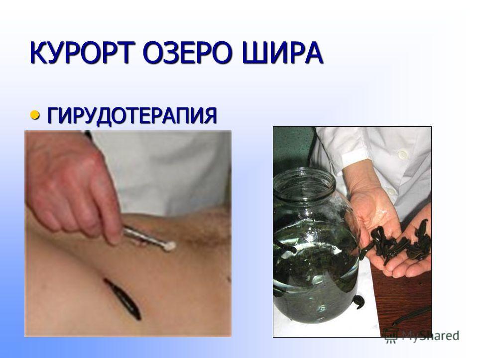 КУРОРТ ОЗЕРО ШИРА ГИРУДОТЕРАПИЯ ГИРУДОТЕРАПИЯ