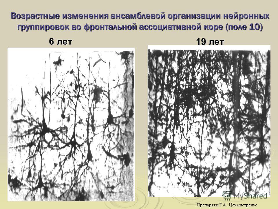 Возрастные изменения ансамблевой организации нейронных группировок во фронтальной ассоциативной коре (поле 10) 6 лет 19 лет Препараты Т.А. Цехмистренко