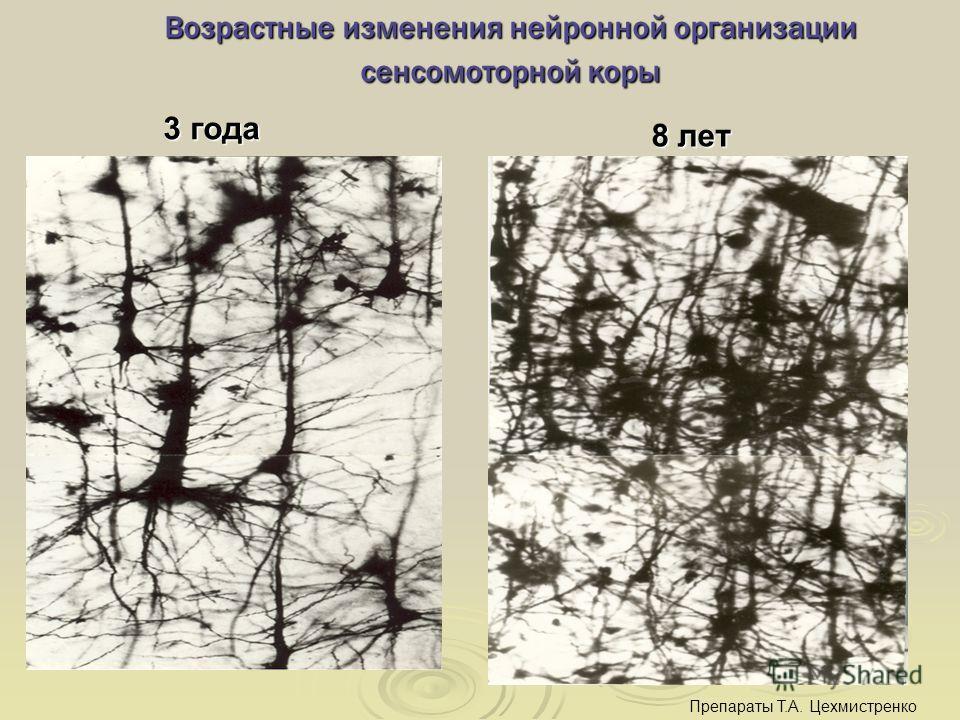 Возрастные изменения нейронной организации сенсомоторной коры 3 года 3 года 8 лет 8 лет Препараты Т.А. Цехмистренко