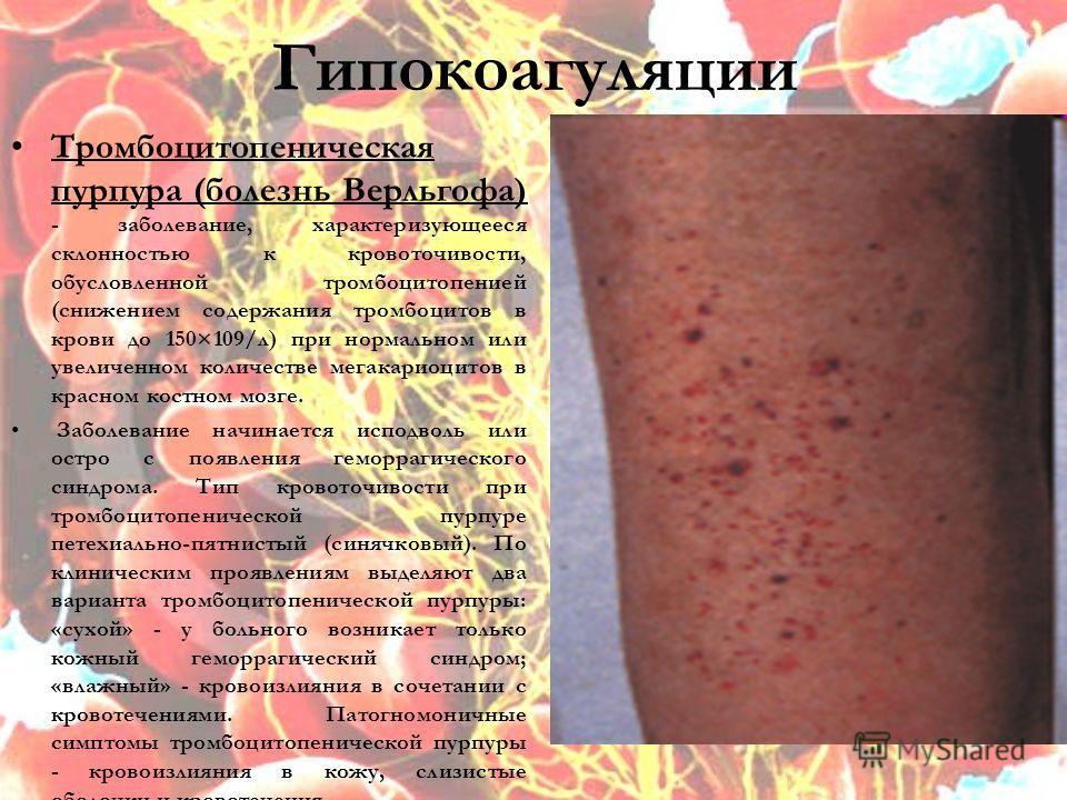 Гипокоагуляции Тромбоцитопеническая пурпура (болезнь Верльгофа) - заболевание, характеризующееся склонностью к кровоточивости, обусловленной тромбоцитопенией (снижением содержания тромбоцитов в крови до 150×109/л) при нормальном или увеличенном колич