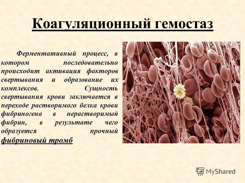 Коагуляционный гемостаз Ферментативный процесс, в котором последовательно происходит активация факторов свертывания и образование их комплексов. Сущность свертывания крови заключается в переходе растворимого белка крови фибриногена в нерастворимый фи