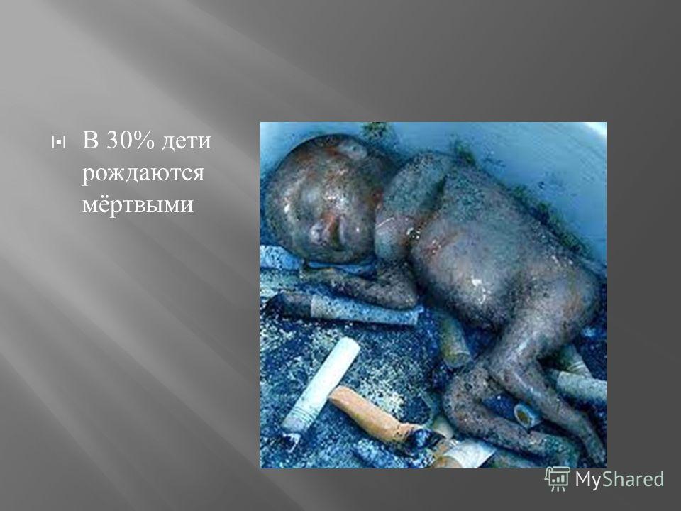 В 30% дети рождаются мёртвыми