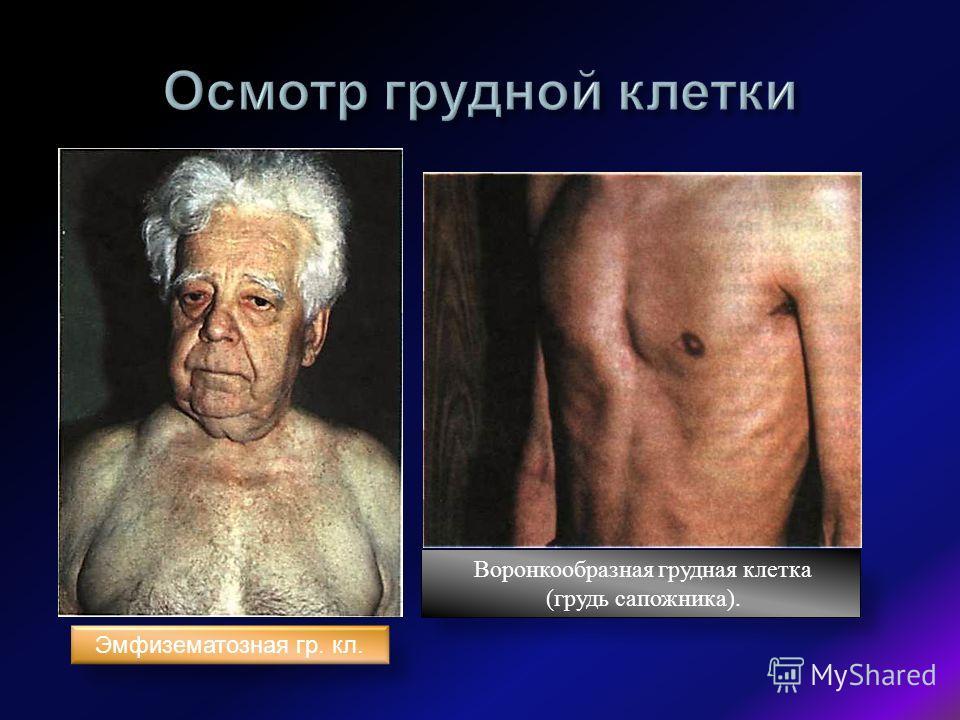 Эмфизематозная гр. кл. Воронкообразная грудная клетка (грудь сапожника).