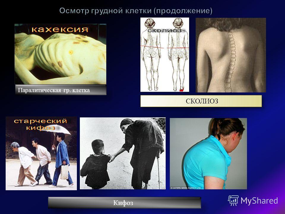 Паралитическая гр. клетка СКОЛИОЗ Кифоз