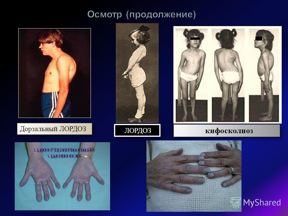 Дорзальный ЛОРДОЗ ЛОРДОЗ кифосколиоз