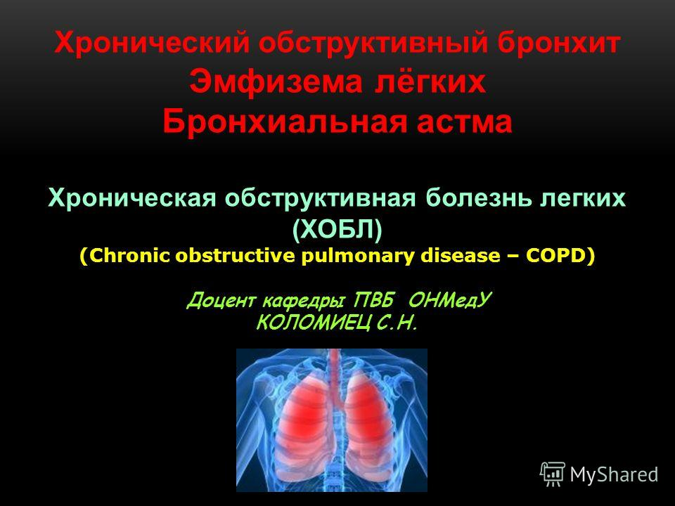 Хронический обструктивный бронхит Эмфизема лёгких Бронхиальная астма Хроническая обструктивная болезнь легких (ХОБЛ) (Chronic obstructive pulmonary disease – COPD) Доцент кафедры ПВБ ОНМедУ КОЛОМИЕЦ С.Н.