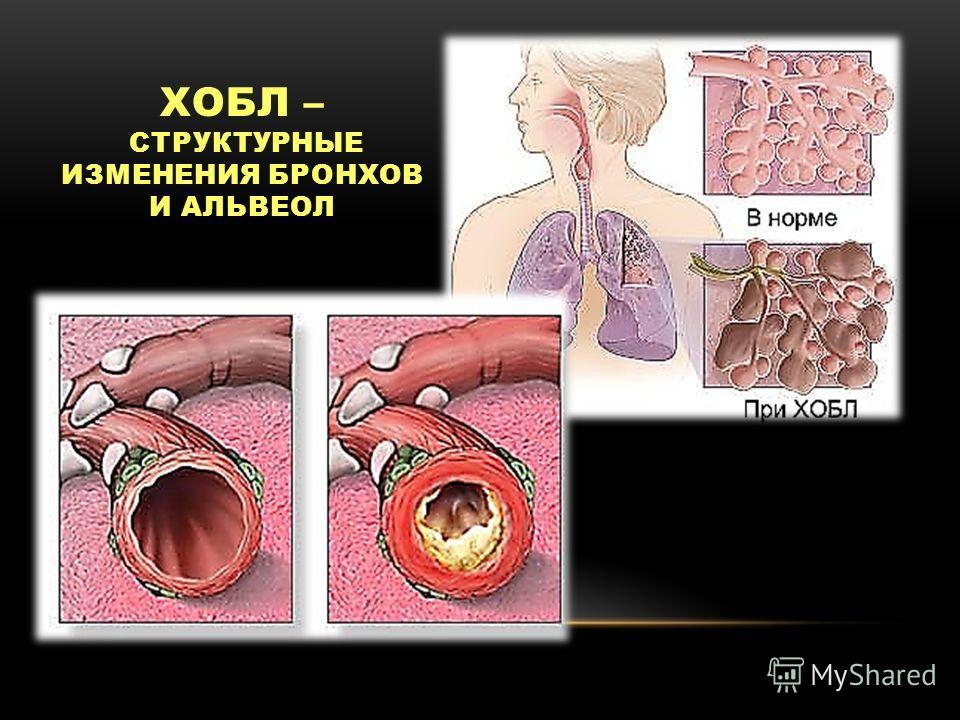 Острый бронхит у беременных история болезни 70