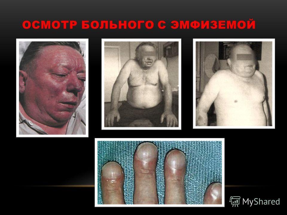 ОСМОТР БОЛЬНОГО С ЭМФИЗЕМОЙ