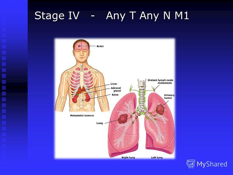 Stage IV - Any T Any N M1 Stage IV - Any T Any N M1