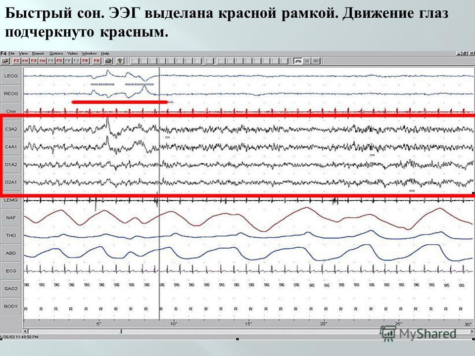 Быстрый сон. ЭЭГ выделана красной рамкой. Движение глаз подчеркнуто красным.