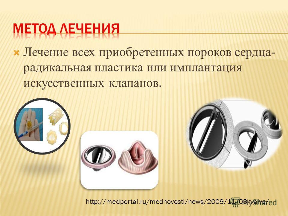 Лечение всех приобретенных пороков сердца- радикальная пластика или имплантация искусственных клапанов. http://medportal.ru/mednovosti/news/2009/11/03/valve/