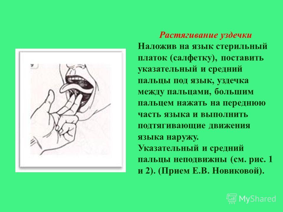 Растягивание уздечки Наложив на язык стерильный платок ( салфетку ), поставить указательный и средний пальцы под язык, уздечка между пальцами, большим пальцем нажать на переднюю часть языка и выполнить подтягивающие движения языка наружу. Указательны