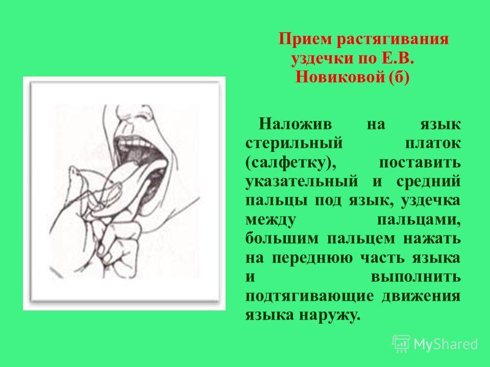 Прием растягивания уздечки по Е. В. Новиковой ( б ) Наложив на язык стерильный платок ( салфетку ), поставить указательный и средний пальцы под язык, уздечка между пальцами, большим пальцем нажать на переднюю часть языка и выполнить подтягивающие дви