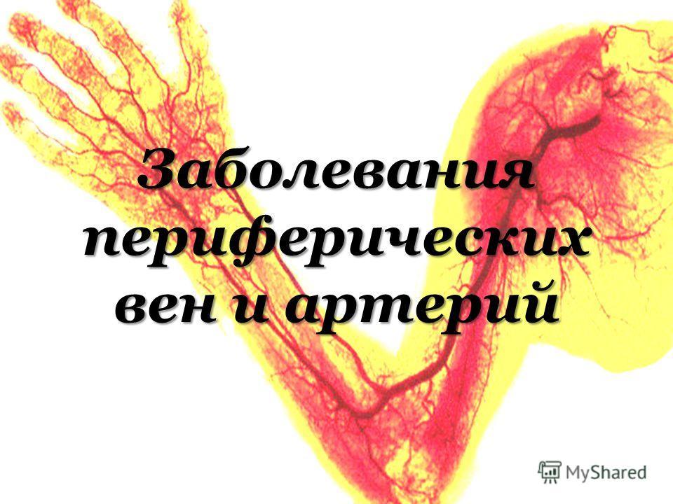 Заболевания периферических вен и артерий