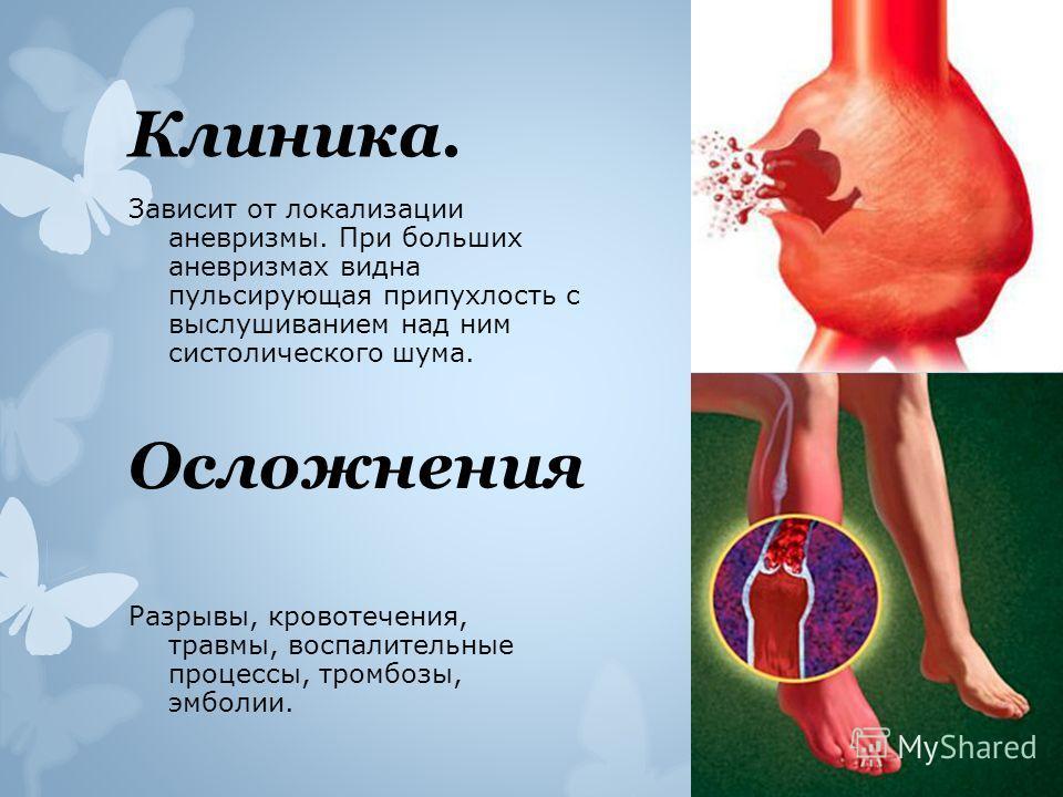 Клиника. Зависит от локализации аневризмы. При больших аневризмах видна пульсирующая припухлость с выслушиванием над ним систолического шума. Осложнения Разрывы, кровотечения, травмы, воспалительные процессы, тромбозы, эмболии.