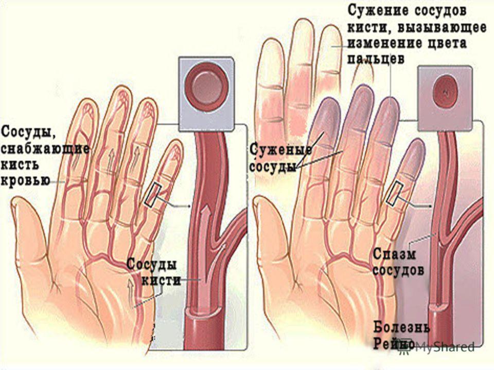 Болезнь Рейно Это ангиотрофоневроз, сопровождающийся резко выраженным микроциркуляторным расстройствами мелких, концевых артерий и артериол. В остове заболевания лежат нарушения сосудистой иннервации.Причины: Хроническая травмотизация Эндокринные нар