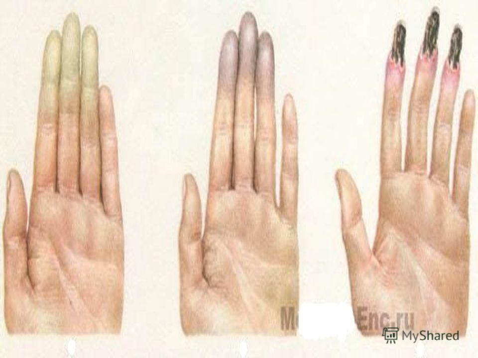 Клиника. Протекает болезнь Рейно в виде приступов. Начинается заболевание обычно с похолодания, а затем и побледнения пальцев рук. В дальнейшем такие явления наблюдаются на пальцах ног, реже на ушных раковинах, кончике носа и языка. Больной жалуется