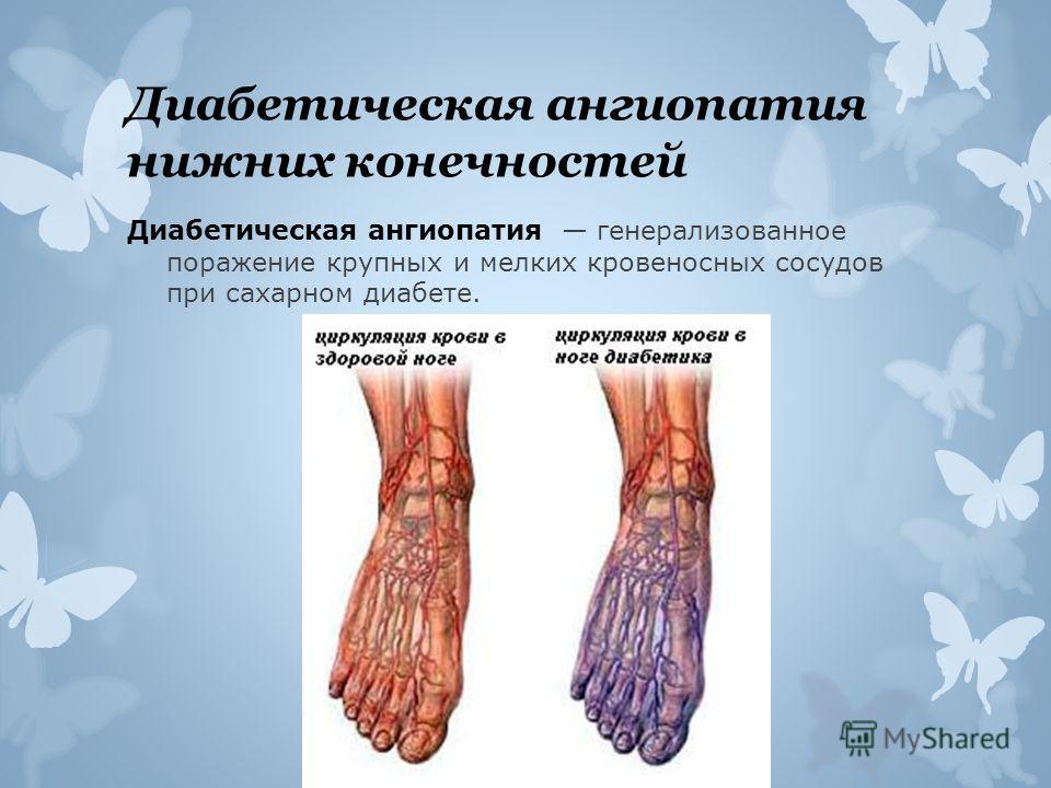 Диабетическая ангиопатия нижних конечностей Диабетическая ангиопатия генерализованное поражение крупных и мелких кровеносных сосудов при сахарном диабете.
