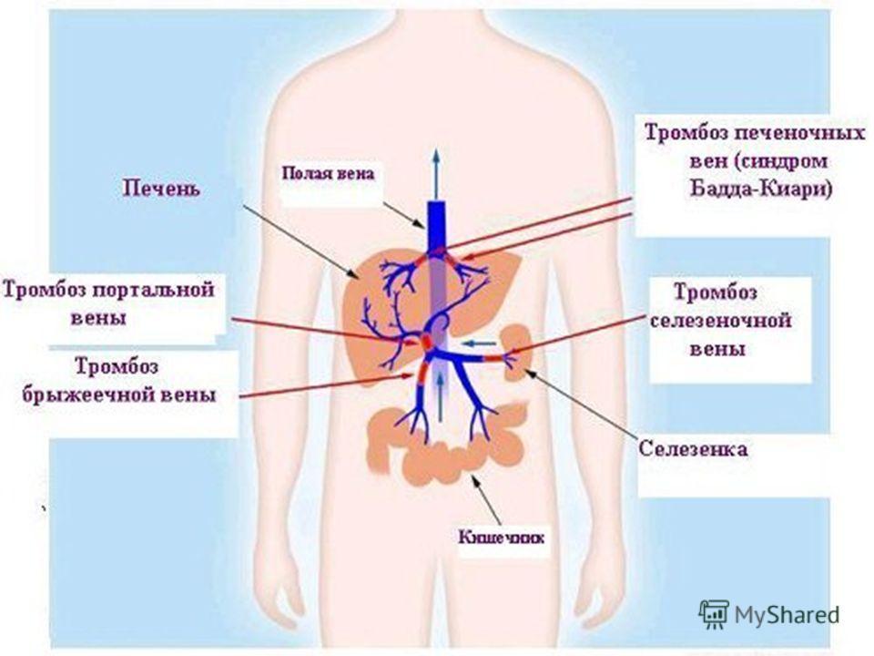Тромбоз. Патологическое прижизненное образование сгустка крови в просвете периферической артерии. Причины: Выделяют следующие факторы, способствующие развитию тромбоза (триада Вирхова): состав крови (гиперкоагуляция или тромбофилия) повреждение сосуд