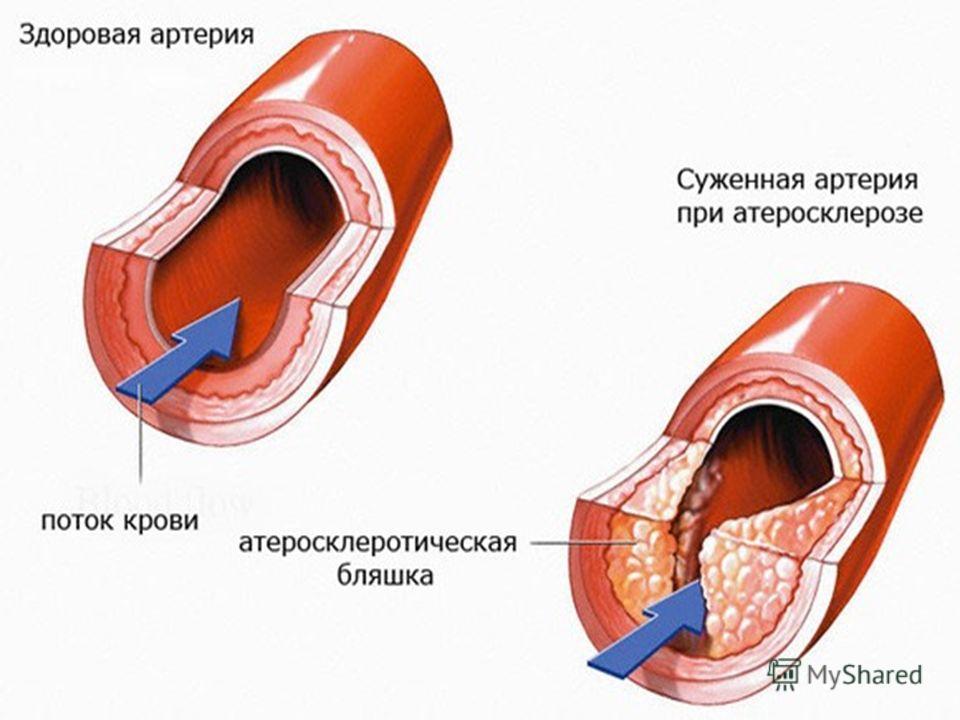 Заболевания артерий конечностей. Облитерирующий атеросклероз - это заболевание артерий, при котором происходит частичное или полное прекращение кровотока в нижних конечностях вследствие закупорки сосудов атеросклеротическими бляшками или тромбами.