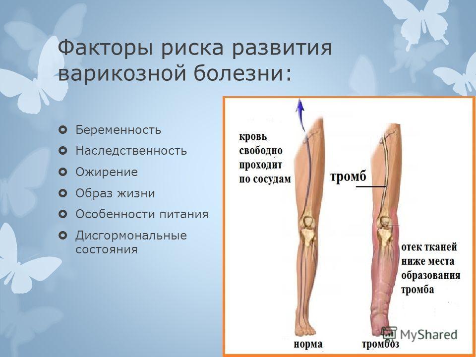 Что делать если болит нога при варикозе