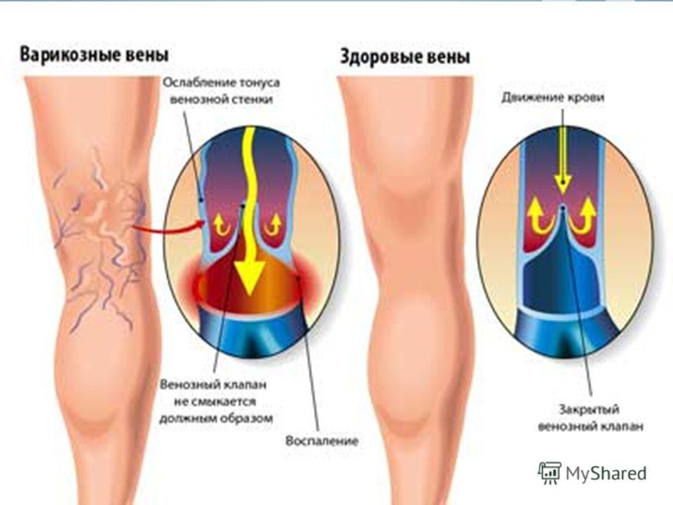 Клиника 1. Боль. Разновидность боли при варикозе также весьма богата: - Горячая пульсирующая боль, - Ночные судороги и зуд в мышцах, - Боли при ходьбе, - Боль по ходу венозных стволов, - Общая боль и ломота в ногах 2. Отеки в ногах. 3. Чувство распир