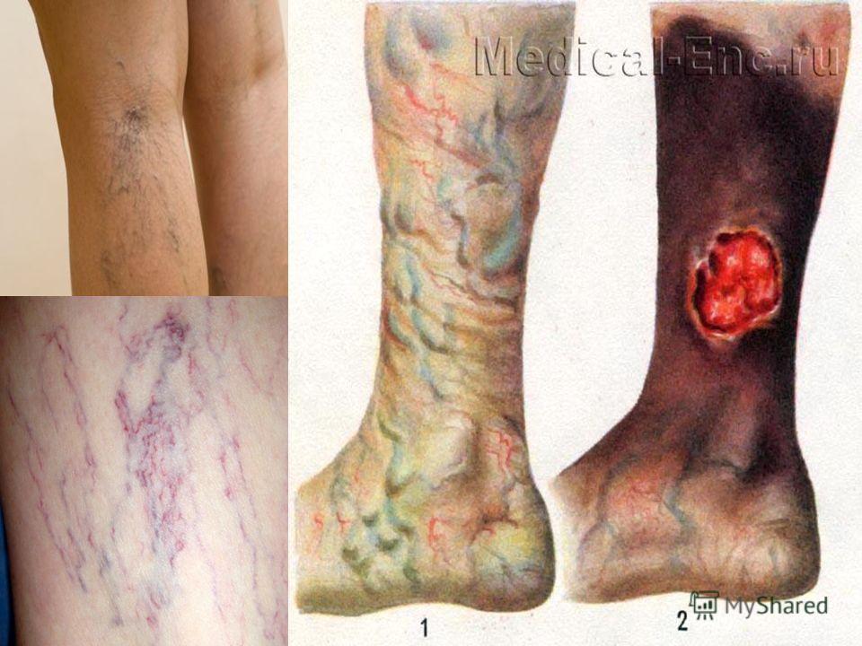 3 стадии варикозной болезни. Стадия компенсации Жалобы отсутствуют, при этом на нижней конечности видны извитые варикозно расширенные вены. Стадия субкомпенсации – помимо варикозного раширения вен, отмечается пастозность или преходящие отеки в област