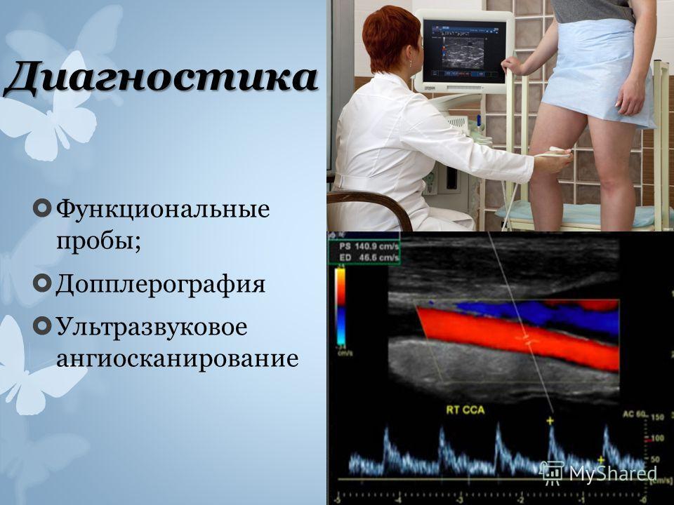Диагностика Функциональные пробы; Допплерография Ультразвуковое ангиосканирование