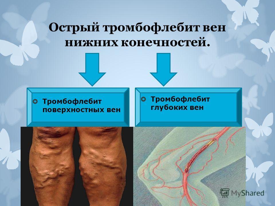 Острый тромбофлебит вен нижних конечностей. Тромбофлебит поверхностных вен Тромбофлебит глубоких вен