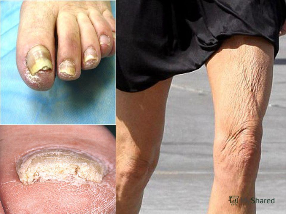 Клиника Ощущение холода, онемение в пальцах стопы, утомляемость ног при ходьбе, появление болей – симптом перемежающейся хромоты. Появляется постоянная боль в дистальных отделах конечностей, усиливающаяся ночью бессонница, отсутствие аппетита, измене