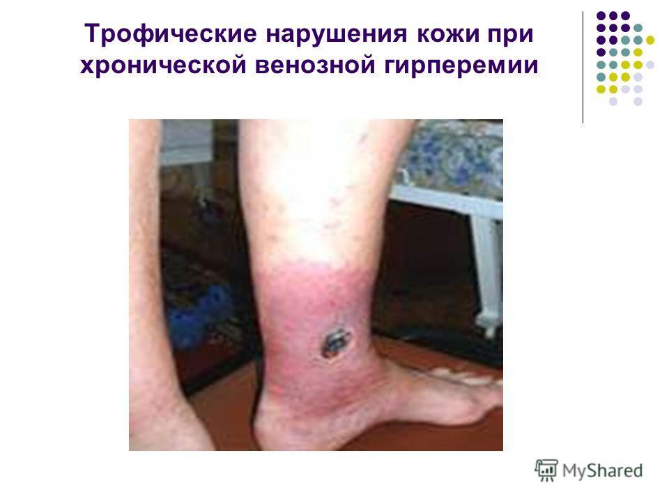 Трофические нарушения кожи при хронической венозной гирперемии