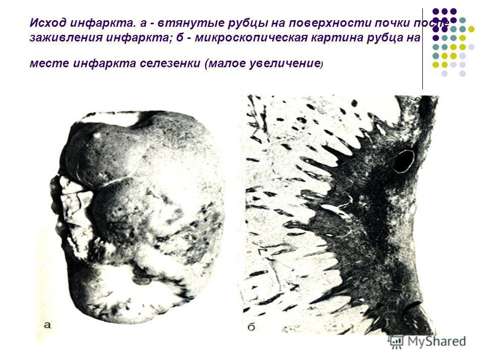 Исход инфаркта. а - втянутые рубцы на поверхности почки после заживления инфаркта; б - микроскопическая картина рубца на месте инфаркта селезенки (малое увеличение )