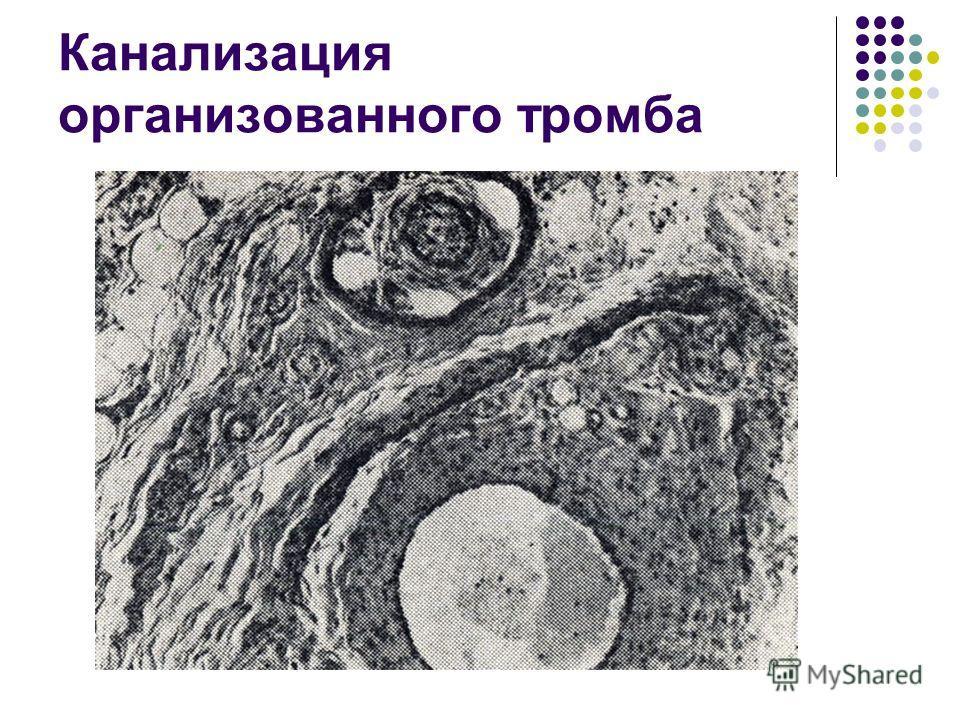 Канализация организованного тромба