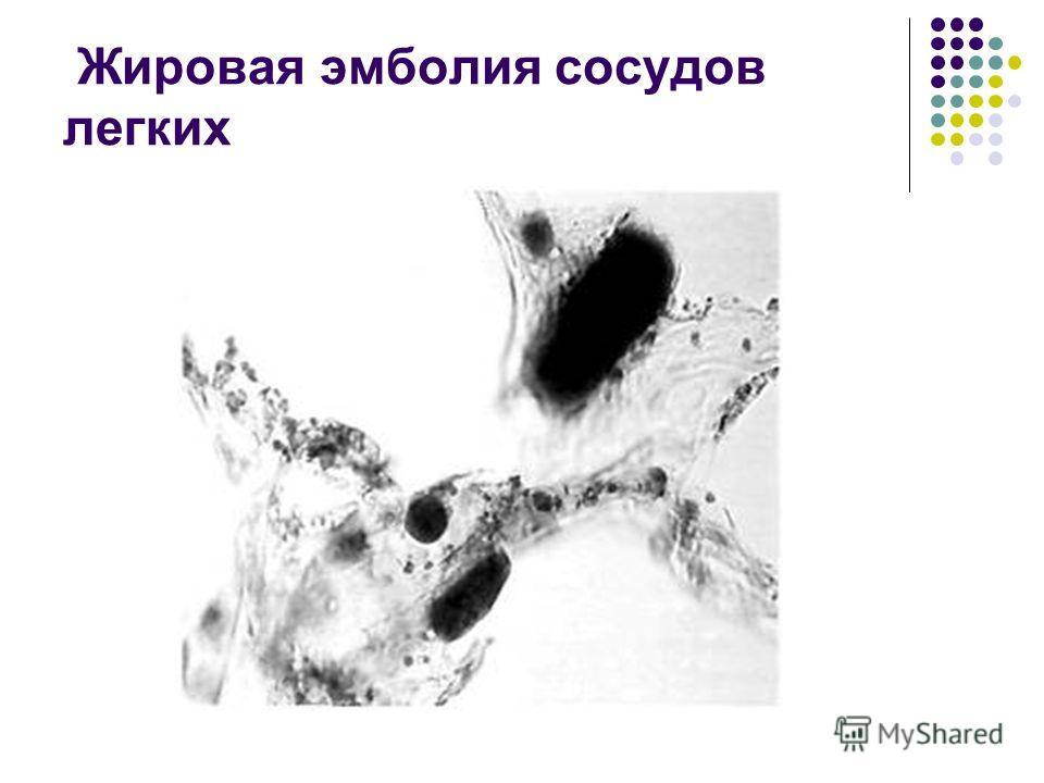 Жировая эмболия сосудов легких