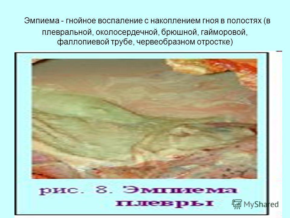 Эмпиема - гнойное воспаление с накоплением гноя в полостях (в плевральной, околосердечной, брюшной, гайморовой, фаллопиевой трубе, червеобразном отростке)