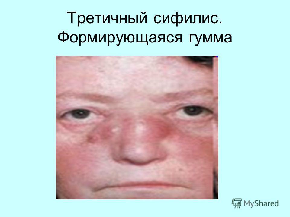 Третичный сифилис. Формирующаяся гумма