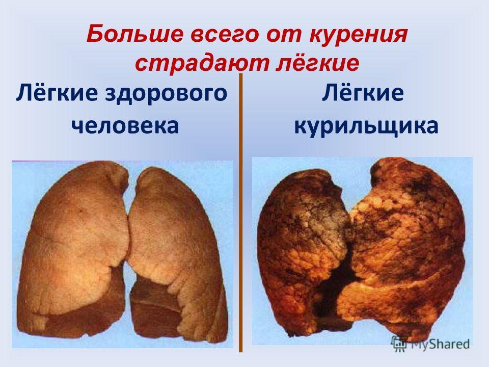 Лёгкие здорового человека Лёгкие курильщика Больше всего от курения страдают лёгкие