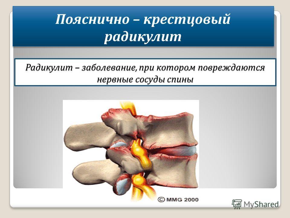 Радикулит – заболевание, при котором повреждаются нервные сосуды спины Пояснично – крестцовый радикулит