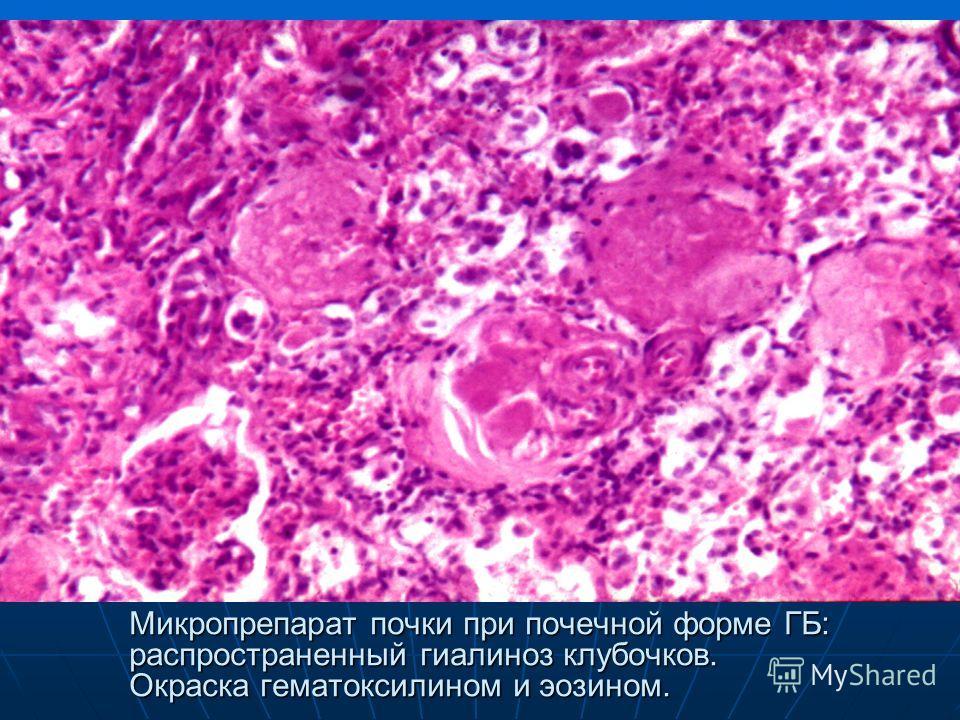 Микропрепарат почки при почечной форме ГБ: распространенный гиалиноз клубочков. Окраска гематоксилином и эозином.