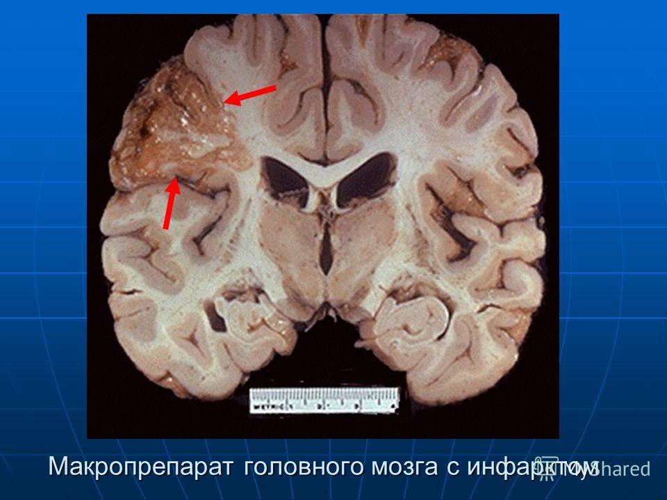 Макропрепарат головного мозга с инфарктом