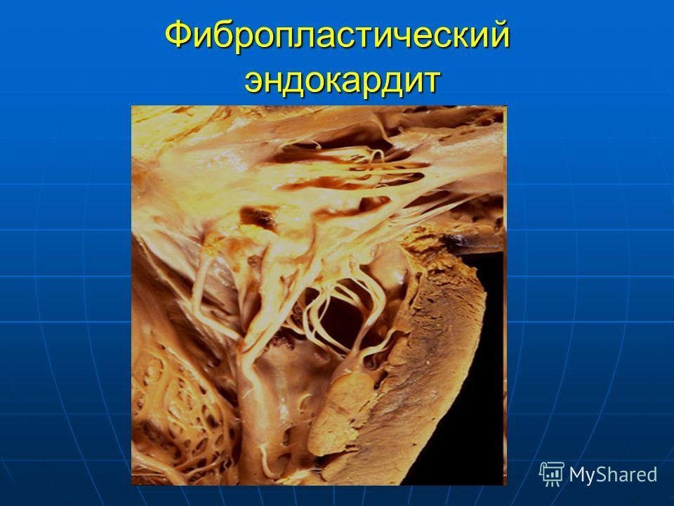 Фибропластический эндокардит