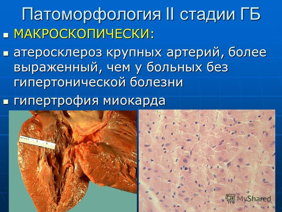 Патоморфология II стадии ГБ МАКРОСКОПИЧЕСКИ: МАКРОСКОПИЧЕСКИ: атеросклероз крупных артерий, более выраженный, чем у больных без гипертонической болезни атеросклероз крупных артерий, более выраженный, чем у больных без гипертонической болезни гипертро