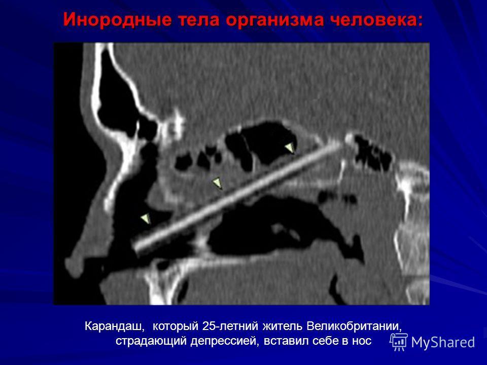 Инородные тела организма человека: Карандаш, который 25-летний житель Великобритании, страдающий депрессией, вставил себе в нос