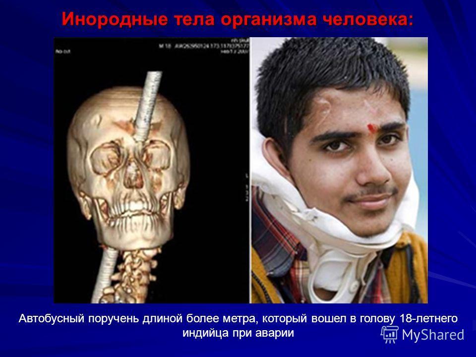 Инородные тела организма человека: Автобусный поручень длиной более метра, который вошел в голову 18-летнего индийца при аварии