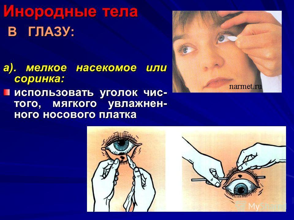 Инородные тела В ГЛАЗУ: а). мелкое насекомое или соринка: использовать уголок чис- того, мягкого увлажнен- ного носового платка